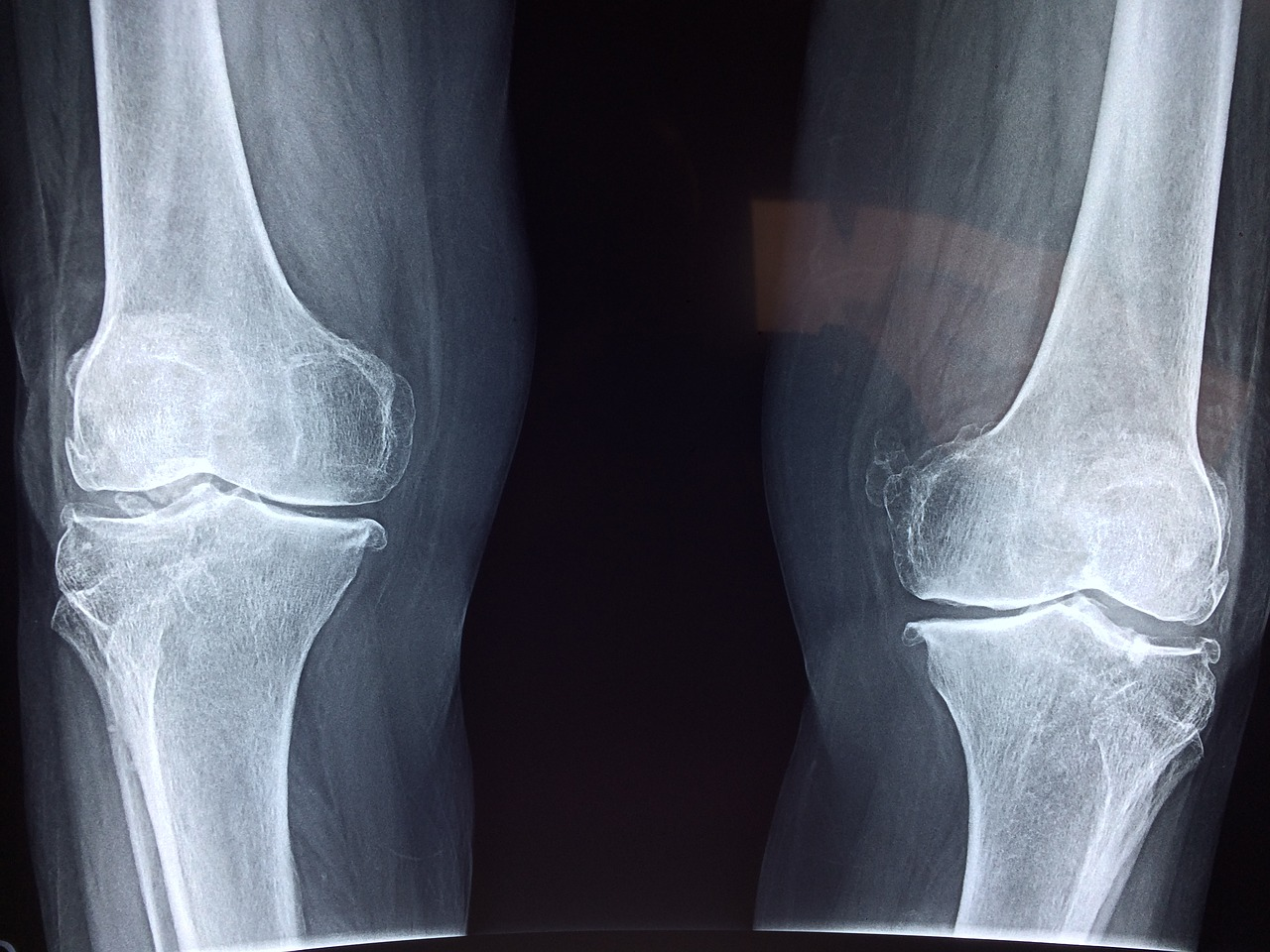 x-ray-of-the-knee